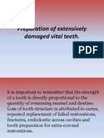 Preparation of Extensively Damaged Vital Teeth