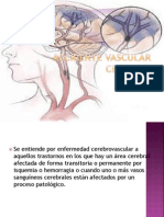 Accidente Vascular Cerebral 3
