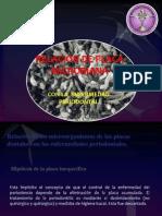Placa y Periodontitis