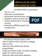 Diagnostico Diferencial de Colitis Ulcerosa y Enfermedad De