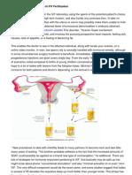 Comparing Sensible Plans in FIV Fertilization1539scribd