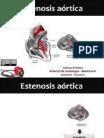 Estenosis Aortica - seminario