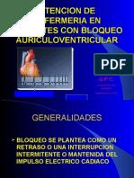 atencion de enfermeria en un paciente con bloqueo auriculoventricular