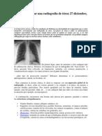 Cómo interpretar una radiografía de tórax