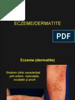 47824504 Curs Eczeme Dermatite