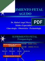30.Sufrimiento Fetal