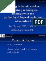 AVC Radiologia