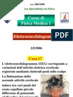 Elettroencefalogramma