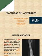 fxantebrazo-120422183252-phpapp02