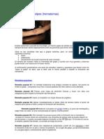 Contusiones - Golpes - Hematomas