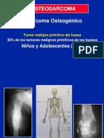03- Osteosarcomas