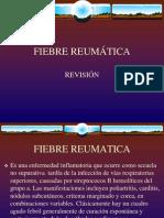 FIEBRE REUMÁTICA PRESENTACIÓN