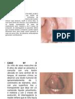 PRÁCTICA CASOS CLINICOS CLASE PATOLOGIAS GLANDULAS SALIVALES