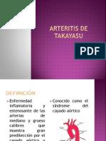 Arteritis de Takayasu 2