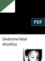 Sindrome Fetal Alcoolica