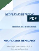 Laboratorio No.6 Neoplasias Hepáticas