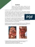 Trabajo de Ciru 3333 Investigacion 2010