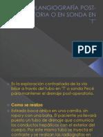 COLANGIOGRAFÍA POST-OPERATORIA O EN SONDA EN _T