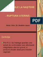 Ruptura uterina