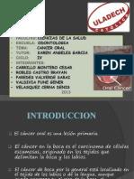 Tratamiento Del Cancer Oral en Odontologia_grupal_exposicion Copia