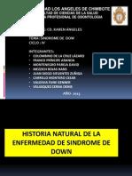 Historia Natural Del Sindrome de Down