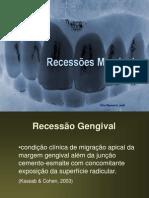 recessoes_gengivais_2008