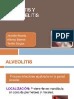 Alveolitis y Osteomelitisss
