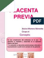 Placenta Previa Expo