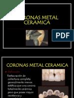 Coronas Metal Ceramica