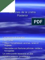 Lesiones de La Uretra Posterior -> Futura Médica