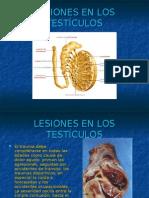 Lesiones en Los Testiculos -> Futura Médica