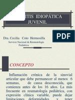 Reumatologia_Artritis Ideopatica Juvenil