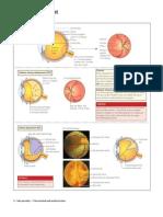 Retinal Detach