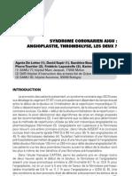 Syndrome Coronarien Aigu - Angioplastie, Thrombolyse, Les Deux