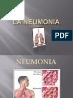 La Neunomonia
