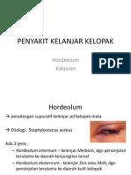 penyakit kelenjar kelopak mata