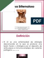 Lupus Eritematoso