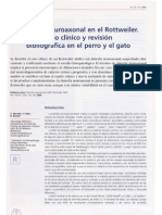 Caso Clinioco Distrofia Neuroaxonal