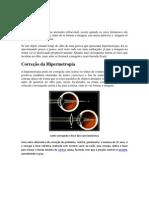 Hipermetropia, Emetropia e Miopia