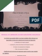 PROTESIS FIJA.. Exposicion de Fati