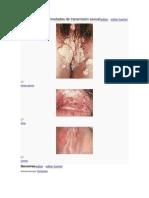Infecciones y enfermedades de transmisión sexual