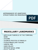 Appearance of Anatomic Structures on Panoramic Image
