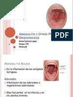 Amigdalitis y Otros Procesos Orofaringeos