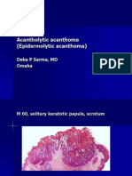 Acantholytic Acanthoma. M 60, Scrotum