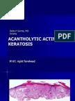 Acantholytic Solar Keratosis, M 67, Forehead