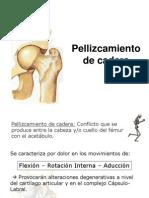 Fracturas y pinzamiento de cadera.ppt