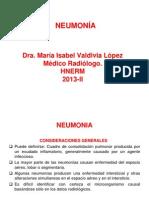 Clase 1 Neumonia