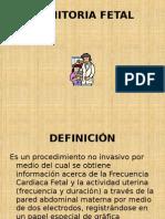 Monitoria Fetal