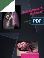 Metástasis a pulmón (1)