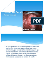 Cancer de Cervix.pptx